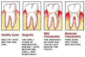 periodontitis disease stages
