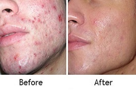 before and after microdermabrasion procedure