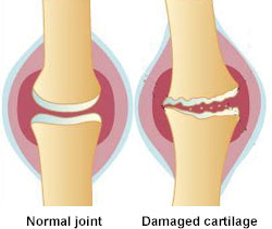 Osteoarthritis Social Security Disability