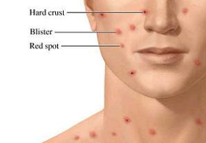 Adult Chicken Pox