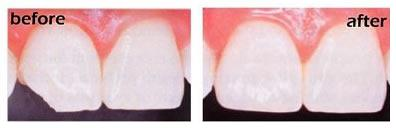 Chipped tooth fix