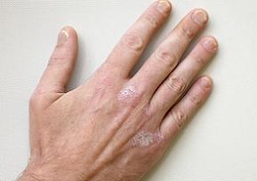 mild psoriasis