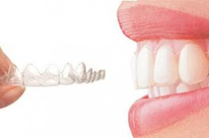 invisible teeth brace for adults