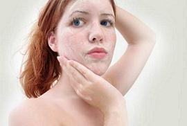 woman with dry skin because of vitamin E deficiency
