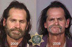 cocaine addiction before and after