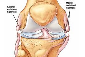 knee with collateral ligament injuries