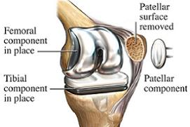 total knee replacement model