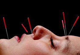 woman undergoing facial acupuncture