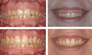 gum graft surgery before and after
