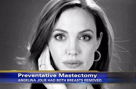 angelina jolie preventative mastectomy
