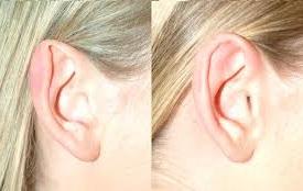 congenital ear deformity