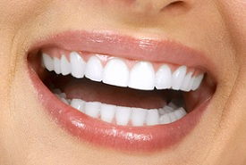 porcelain veneers smile