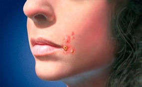impetigo sores around the mouth